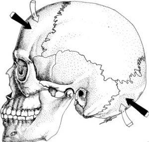 kinesiologia craniosacrale