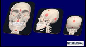 Punti Neurovascolari NovaTherapy®